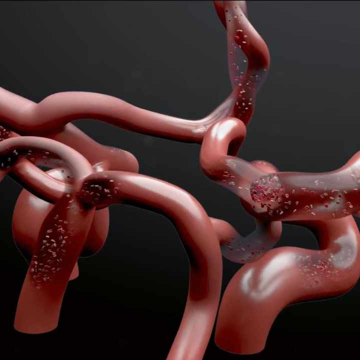 Bloodflow visualization in the circle of willis